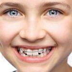 artículo primera vez ortodoncia