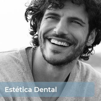estetica dental en Málaga capital