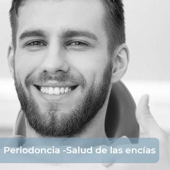Periodoncia en Málaga