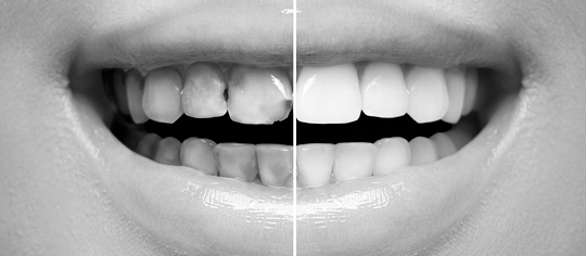 Mockup Dental